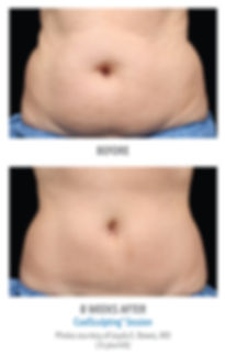 Before an After CoolSculpting Session