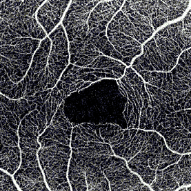 ANGIOGRAPHY OCT FAZ 1.png