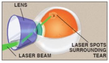 laser για ρωγμη.png