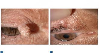 αφαίρεση θηλώματος ανω βλεφαρικού χείλου