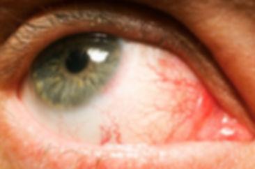 οφθαλμίατρος, οφθαλμιατροσ, τσογκασ οφθαλμιατρος, ηγουμενιτσα οφθαλμιατρος, βλεφαροπλαστικη, οφθαλμοπλαστική, ηγουμενίτσα βλεφαροπλαστική, οφθαλμιατρειο ηγουμενιτσα, Oφθαλμολογικές επεμβάσεις, τσόγκας φώτης χειρουργός οφθαλμίατρος, laser ματια, διαθλαστικές παθήσεις, καταράκτης οφθαλμίατρος τσόγκας, βλαφαροπλαστική, βλεφαροπλαστικη ηγουμενιτσα, τσόγκας βλαφαροπλαστική, eye care plus, eyecareplus, ofthalmiatros, οφθαλμιατρίο, vlafaroplastiki, igoumenitsa ophthalmologist, tsogas ophthalmologist