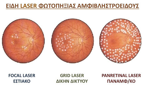 ειδη argon laser.jpg