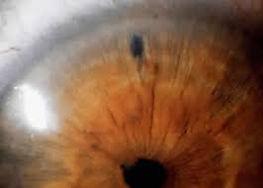 iridotomy 2.jpg