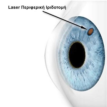 Laser Περιφερική Ιριδοτομή.PNG