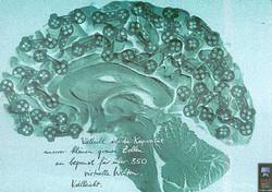 PlayStation - Brain