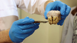 The frontal bone of the sheep