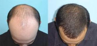 hair-transplant-300x142.jpg
