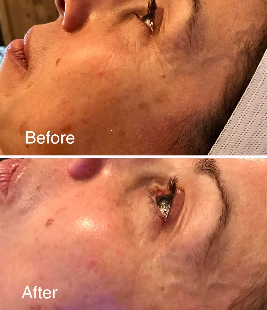 HydraFacial MD by Holly