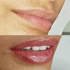 lip4.jfif