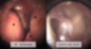 Screen Shot 2020-02-17 at 11.09.59.png