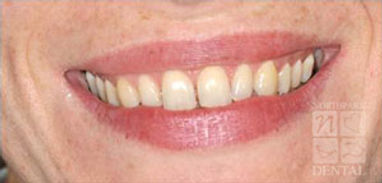 porcelain-veneers-before3.jpg