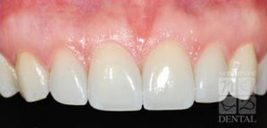 porcelain-veneers-after.jpg