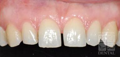 porcelain-veneers-before.jpg