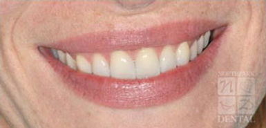 porcelain-veneers-after3.jpg