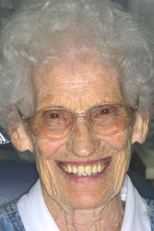 Complet-Dentures-Before.jpg