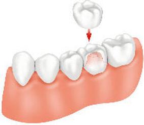 dental-crown.jpg