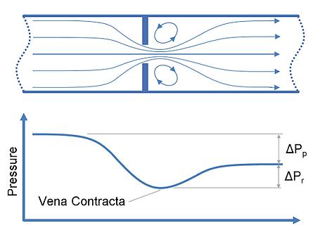 Site Vena Contracta - O que é vena contracta?