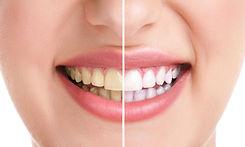 arte-oral-estetica-005.jpg