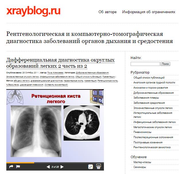 xrayblog.ru