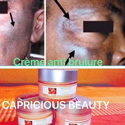 Special anti-burn face cream