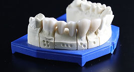 tooth-replacement-759928_1280.jpg