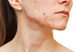 How To Clear and Prevent Acne - Professional Treatments That Work Fast