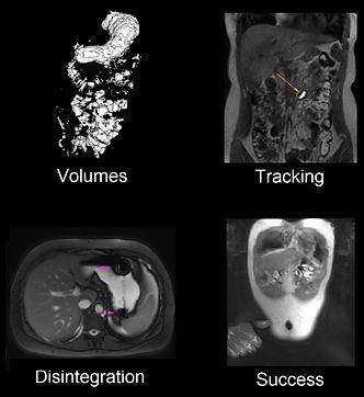 MRI Gastronauten.jpg