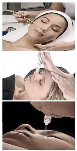 YOUR MICRO DERMABRASION TREATMENTS