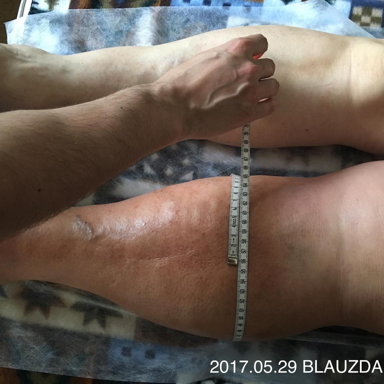Limfedemos gydymo eiga