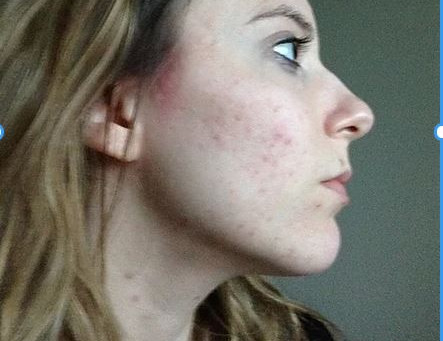 Acne - The Truth and How I Overcame It