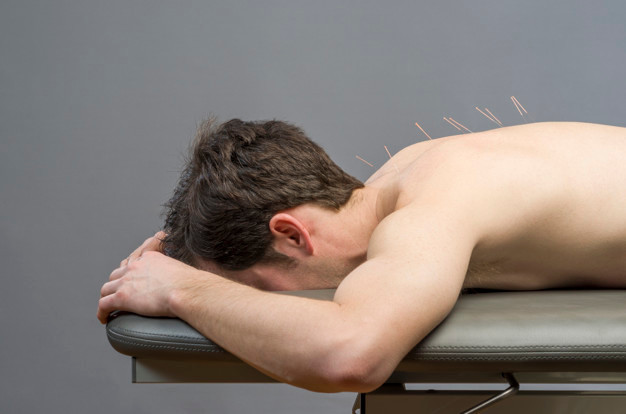 chinese-medicine-doing-acupuncture-man-p