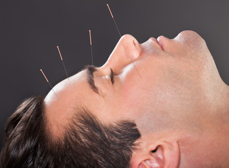 5 Key Ways Acupuncture & TCM can benefit Men's Health