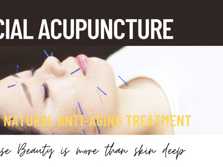 Facial Acupuncture- Restoring a Youthful Appearance Naturally