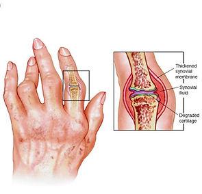 Arthrits.jpg