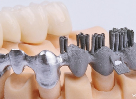 3D Printing Crowns and Bridge.jpg