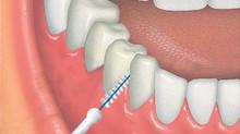 Cómo cuidar tu boca cuando llevas implantes dentales