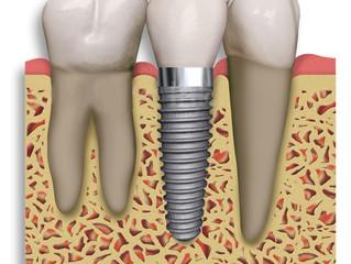 ¿Qué es un implante dental y para qué se utiliza?