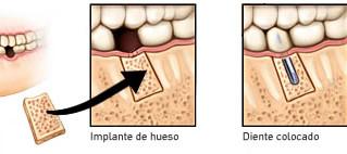 ¿Cómo se pueden colocar implantes dentales cuando no hay hueso suficiente?
