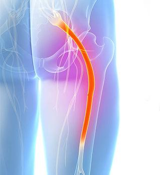 Sciatica & Sciatic Nerve Treatment
