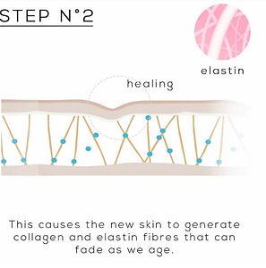 Plasma Fibroblast Procedure   Lavo Laser Sydney