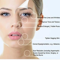 Skin Needling Services in Sydney | Lavo Laser Skin Care Clinic