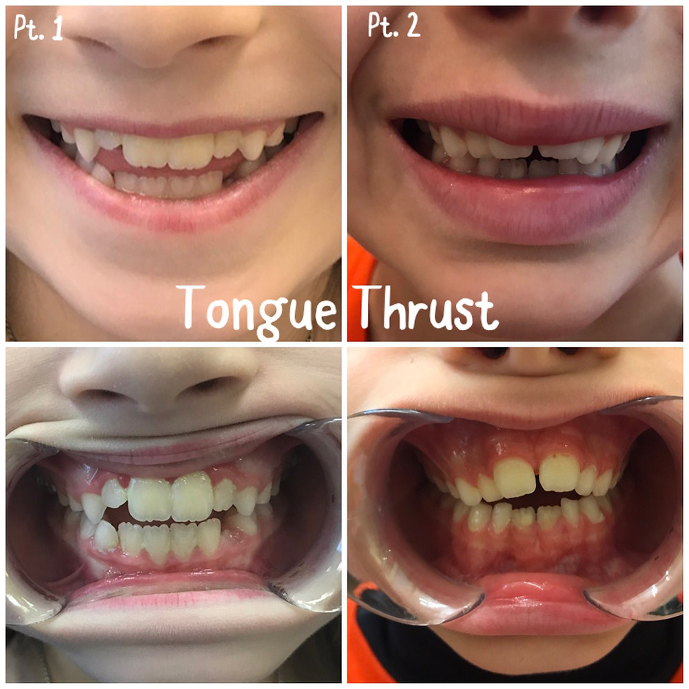 Tongue Thrust for Orofacial Myofunctional Therapy