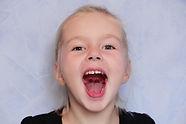 Oral Motor Weakness