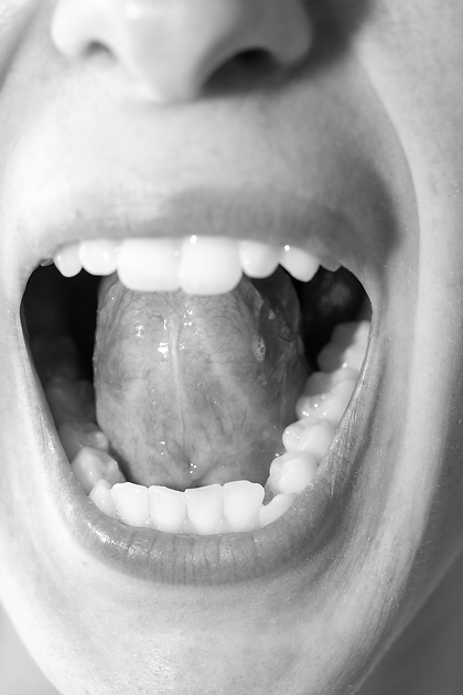 Tethered Oral Tissues