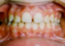 Relapse of Anterior Open Bites