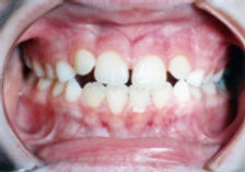 The Importance of Orofacial Myofunctional Therapy in Pediatric Dentistry: Reports of Two Cases