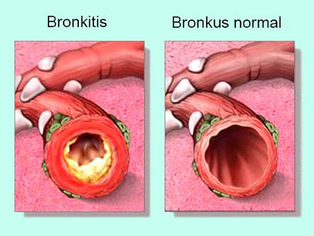 Apa itu Bronkitis? Apa Saja Gejala dan Penyebab Bronkitis?