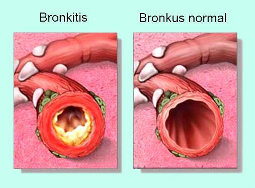 Bronkus Normal dan Bronkitis (Peradangan Bronkus)