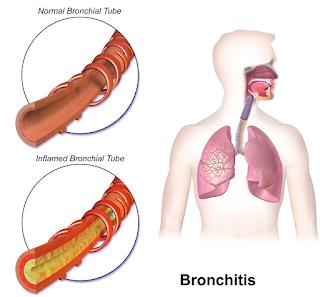 Perbedaan Bronkus Normal dan Bronkus Radang Bronkitis