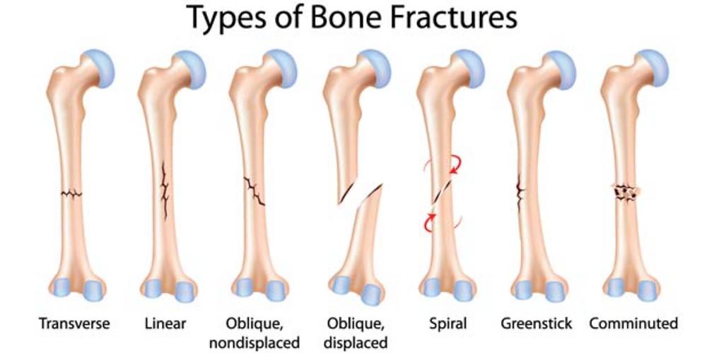 Jenis Fraktur Patah Tulang